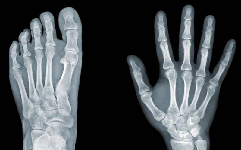 fingers and feet bones,interesting facts, facts about human body, human body facts, strange things about body, list of body facts, amazing facts, health, body organs, body parts, tears in eyes